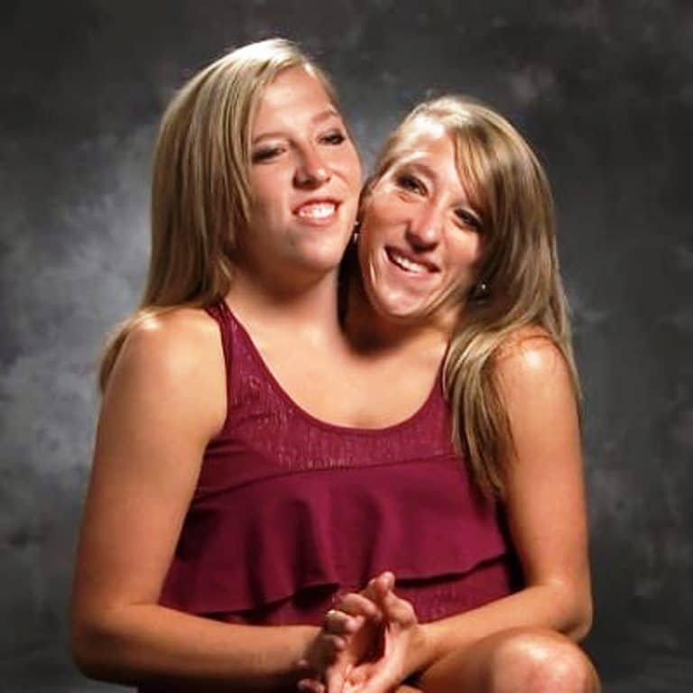 Famous conjoined twins Brittany and Abby get first job as